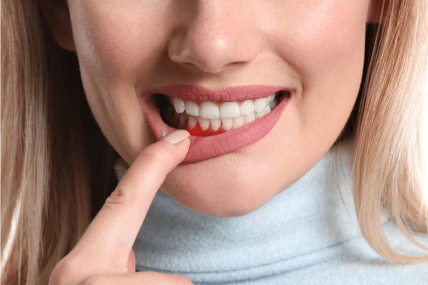Zánět dásní a parodontóza